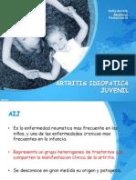 Artritis Idiopatica Juvenil