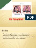 Chest Tube Thoracostomy