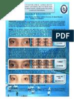PDF Strabismus