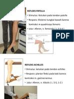 Presentation Reflex Patella-Achiles