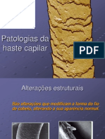 alteracionesestructuralesdeltallocapilar-121123131439-phpapp01.ppt