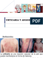 Urticariaangioedemasalomn - Copia