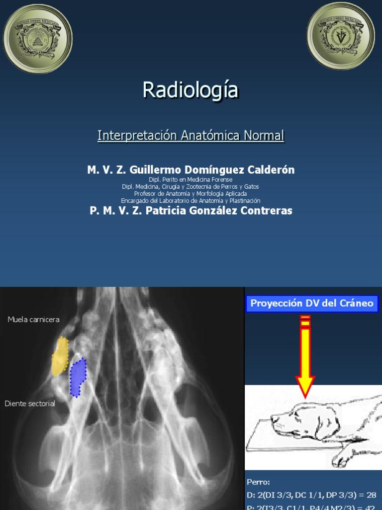 Radiología Interpretación Anatómica Normal