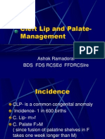 Cleft Lip and Palate- Management