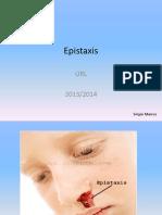Epistaxis (apresentação)