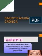 Sinusitis Carcinoma Seno Maxilar Final