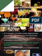 HEAPATITIS ALCOHÒLICA