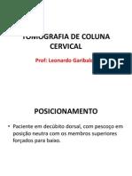 Tomografia de Coluna Cervical