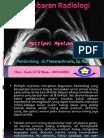 Referat  Radiologi Multiple Myeloma dr.Pherena Amalila, Sp.Rad