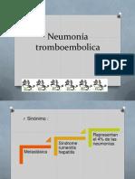 Neumonía tromboembolica