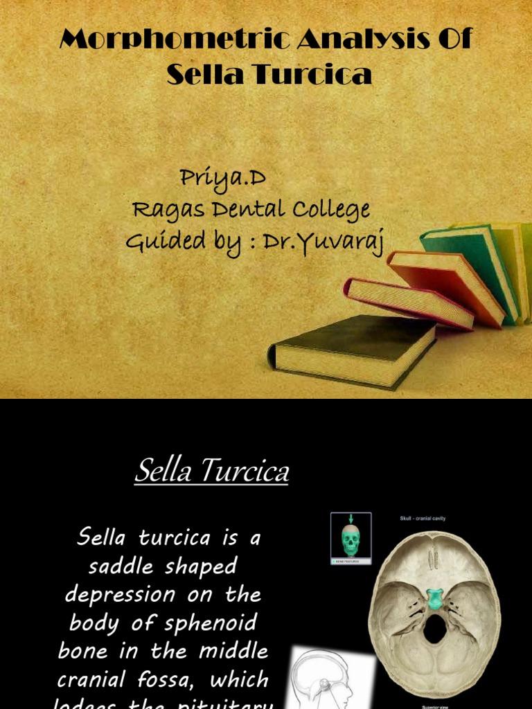 Sella Turbfcica | Human Anatomy | Animal Anatomy