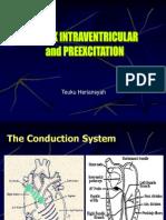 ECG, Block Intraventricular,Preexcitation (Rev)