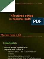 Afectarea Renala in Mielomul Multiplu