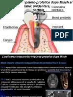 Restaurarile implanto-protetice dupa Misch si                                in caz de edentatie