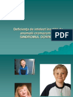sindrom Down.ppt