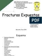 fracturas expuestas PPT