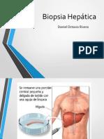 biopsia heptica
