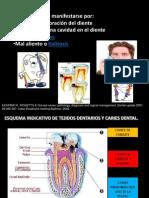 Caries Dental_vilma Mamani