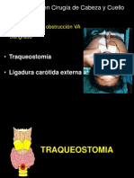02 Traqueotomia.r