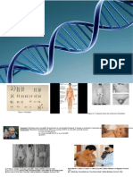 Poster Sindrom Klinefelter.ppt