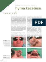Rhinophyma kezelése lézerrel