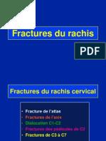 Fract cervicales
