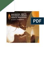 Disfuncio-n Erectil Posterior a Cirugia Radical Prostatica