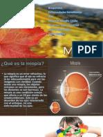 MIOPÍA (presentación)