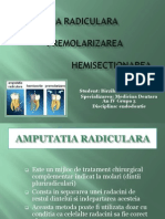 Amputatia Radiculara. Premolarizarea. Hemisectionarea-Endo