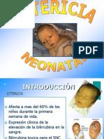 Exposicion Ictericia Materno 33