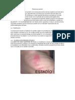 Ulceras Por Presión - Clasificacion