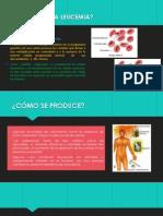 Qué Produce La Leucemia