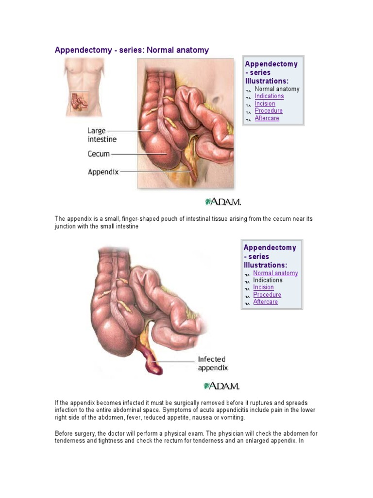 Surgical Anatomy Of Appendix Gallery Human Body Anatomy