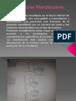 Fracturas Mandibularee1JOSE.pptx