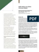Analisis MEF De Una Protesis Metacarpofalangica.pdf