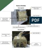 Hueso Etmoides- Detalles anatómicos y caracteristicas