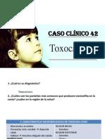 Toxocariosis
