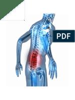 Fibromialgia Diagnostico, Dieta Fibromialgia, Tratamiento Natural Para La Fibromialgia
