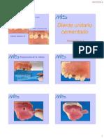 4 Diente Unitario Cementado Sobre Pilar Cementado TAD