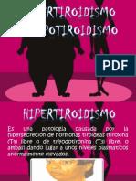 Hipertiroidismo e Hipotiroidismo