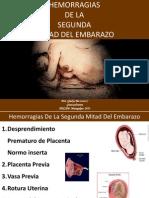 hemorragiasiimitaddelembarazo-130420161244-phpapp01.pptx