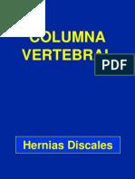 Hernias Discales