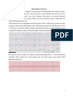 Syok Cardiogenic