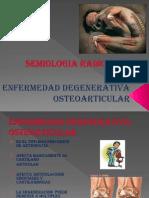 5.-Enfermedad Articular Degenerativa