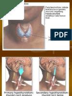 askep tiroid