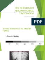 Estudio Radiologico de Abdomen