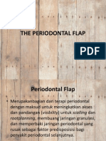 The Periodontal Flap
