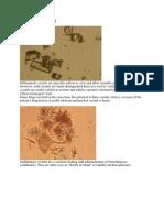 Urinalysis crystals cast.doc