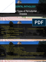 4 Gingivitis Classification Etiology Pathogenesis