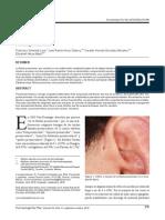 Fistula Preauricular c
